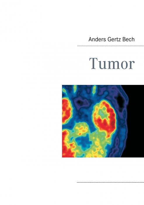 Image of Tumor (E-bog)
