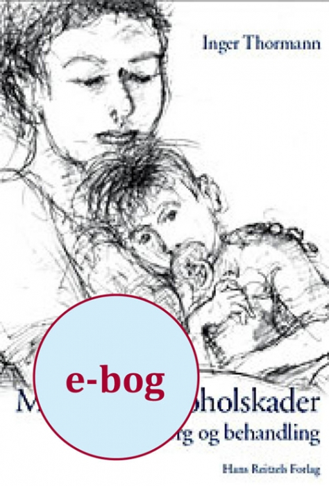 Medfødte alkoholskader (E-bog)