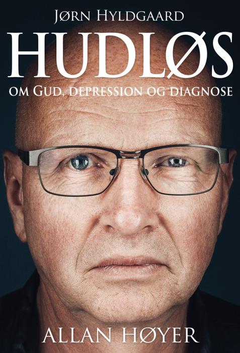 Image of Hudløs (Bog)